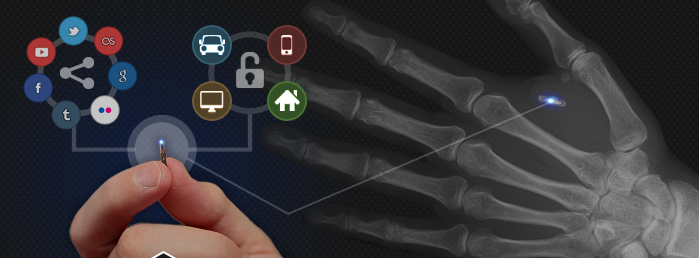 People In Sweden Are Rushing To Have Microchips Inserted Into Their Hands To Make Life MoreConvenient